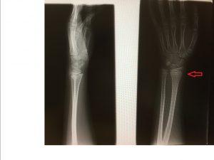 橈骨遠位端部骨折(卒後研修)