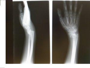 スミス骨折<前腕骨遠位端部骨折>(卒後研修)