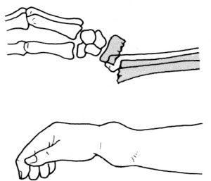 卒前研修 前腕骨骨折の整復・固定