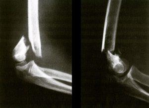 卒前研修 上腕骨顆上骨折の整復・固定