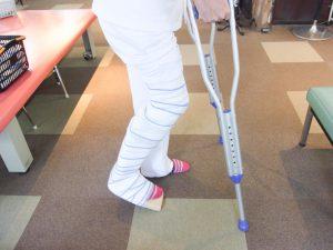 卒前研修・臨床実習 下肢の固定