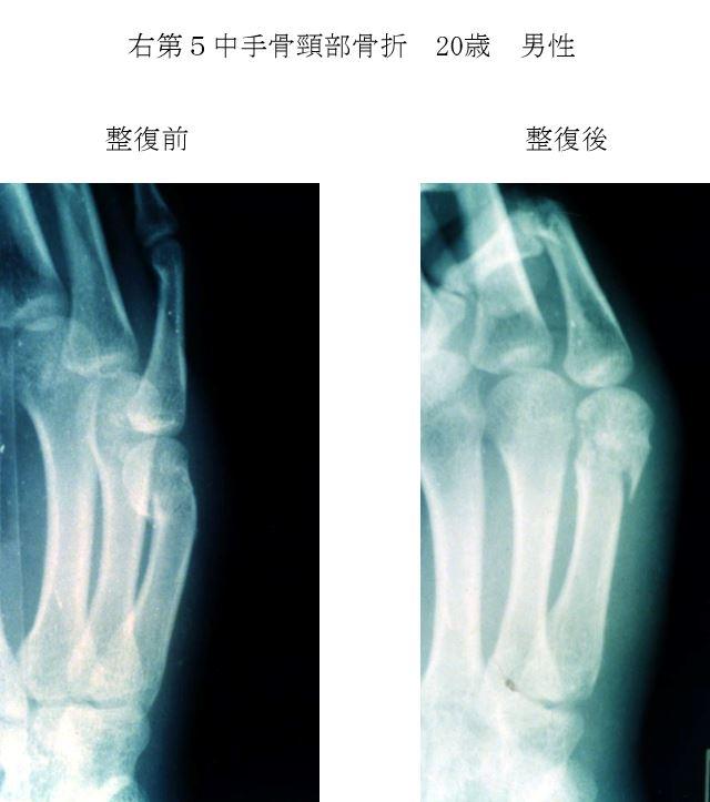 卒前研修 中手骨頸部骨折(ボクサー骨折)