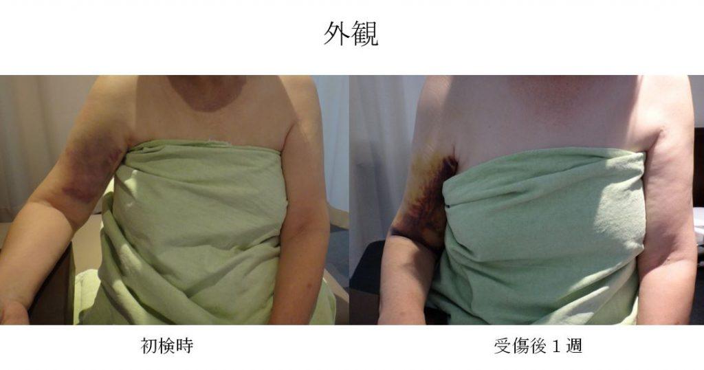 卒前研修 上腕骨外科頸骨折(早期運動療法)