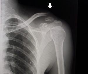 卒前研修・臨床実習 肩部・前腕部包帯固定